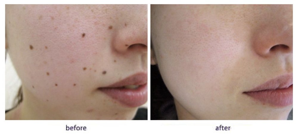Skin Tags | Mansfield Electrolysis & Laser Clinic